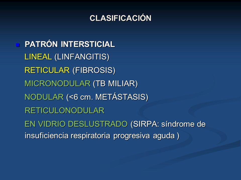 CLASIFICACIÓN PATRÓN INTERSTICIAL. LINEAL (LINFANGITIS) RETICULAR (FIBROSIS) MICRONODULAR (TB MILIAR)