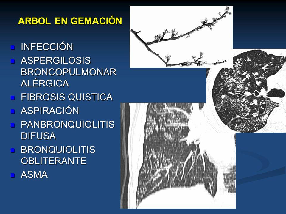 ARBOL EN GEMACIÓNINFECCIÓN. ASPERGILOSIS BRONCOPULMONAR ALÉRGICA. FIBROSIS QUISTICA. ASPIRACIÓN. PANBRONQUIOLITIS DIFUSA.