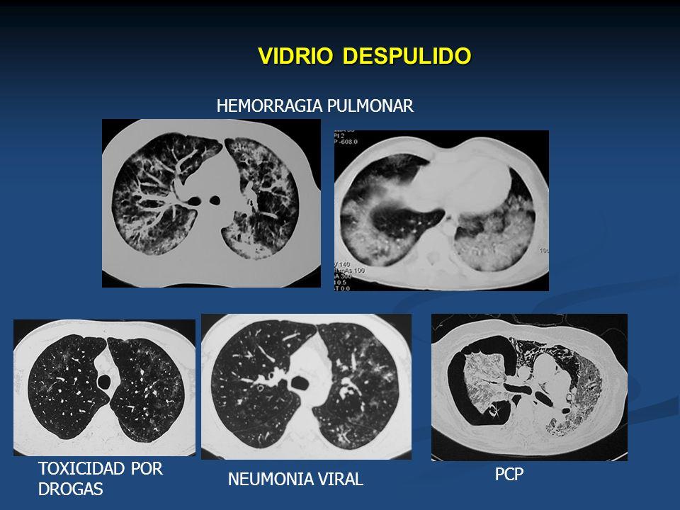 VIDRIO DESPULIDO HEMORRAGIA PULMONAR TOXICIDAD POR PCP DROGAS