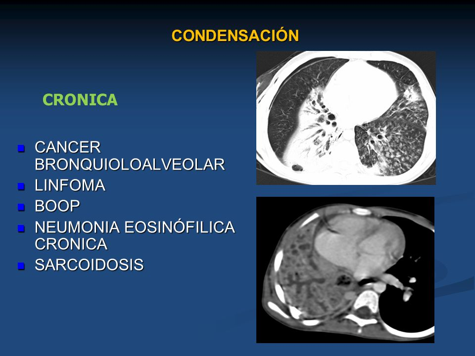 CONDENSACIÓNCRONICA.CANCER BRONQUIOLOALVEOLAR. LINFOMA.