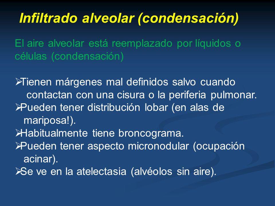 Infiltrado alveolar (condensación)