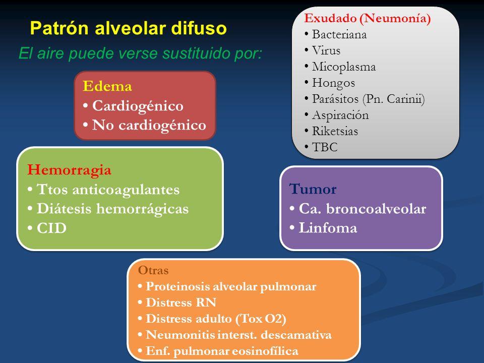 Patrón alveolar difuso