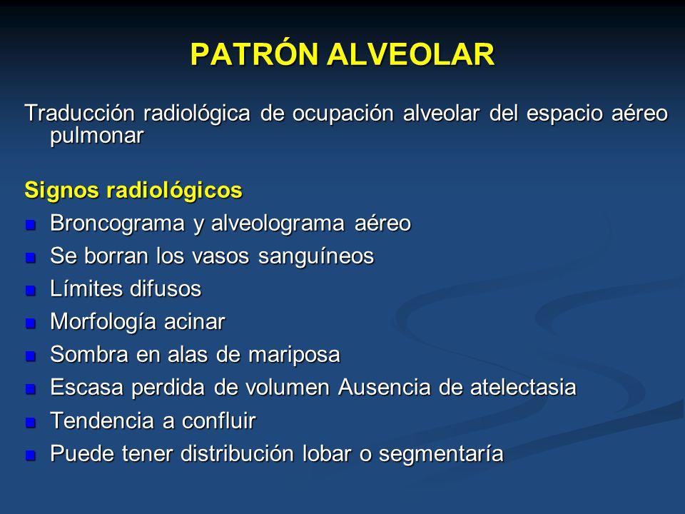 PATRÓN ALVEOLAR Traducción radiológica de ocupación alveolar del espacio aéreo pulmonar. Signos radiológicos.