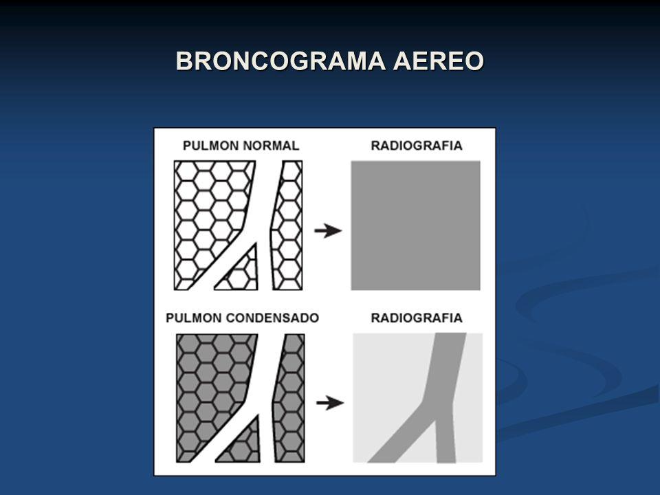 BRONCOGRAMA AEREO