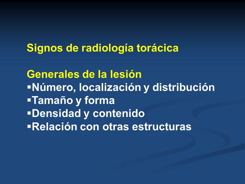 Signos de radiología torácica
