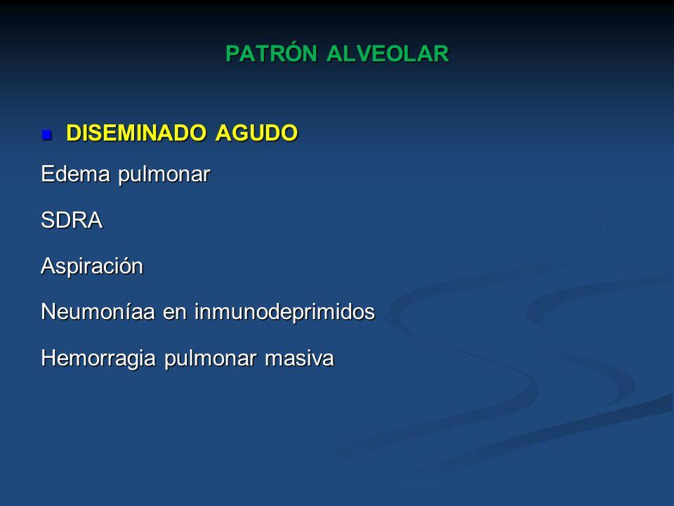 PATRÓN ALVEOLAR DISEMINADO AGUDO. Edema pulmonar. SDRA. Aspiración. Neumoníaa en inmunodeprimidos.