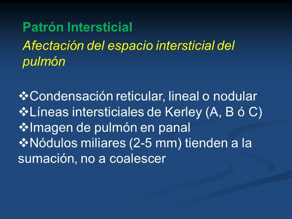 Patrón Intersticial Afectación del espacio intersticial del pulmón. Condensación reticular, lineal o nodular.