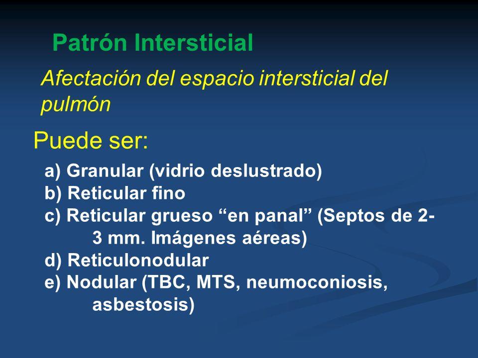 Patrón Intersticial Puede ser: