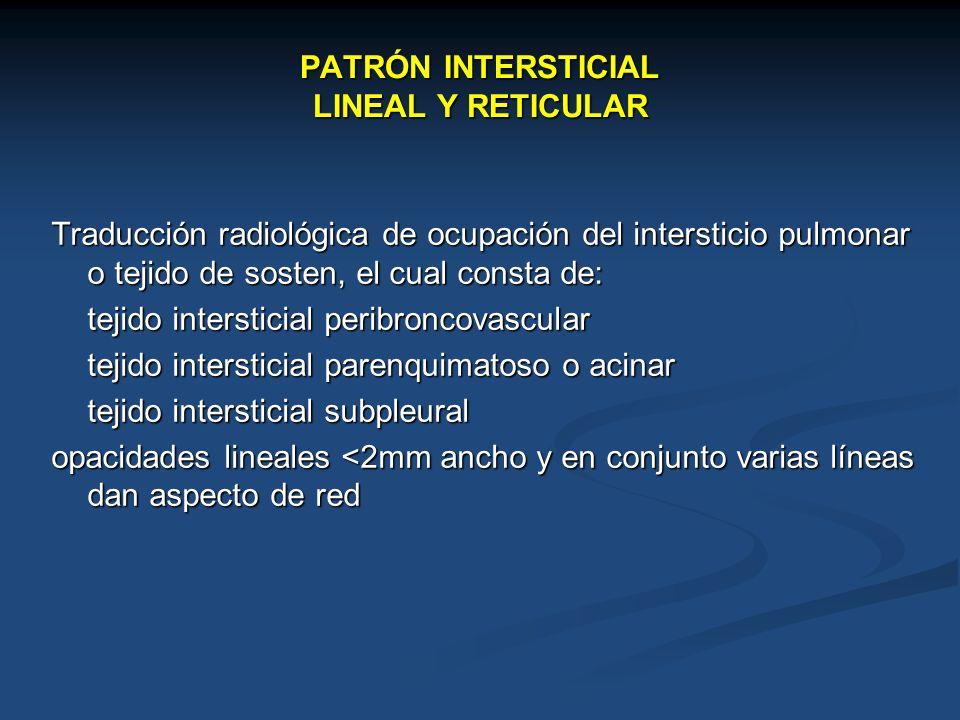 PATRÓN INTERSTICIAL LINEAL Y RETICULAR