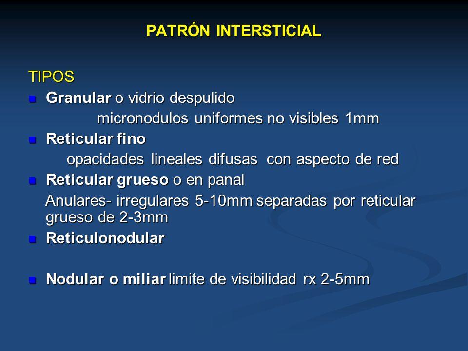 PATRÓN INTERSTICIAL TIPOS. Granular o vidrio despulido. micronodulos uniformes no visibles 1mm. Reticular fino.