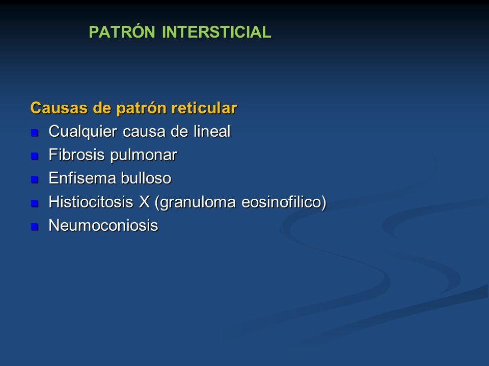 PATRÓN INTERSTICIAL Causas de patrón reticular. Cualquier causa de lineal. Fibrosis pulmonar. Enfisema bulloso.