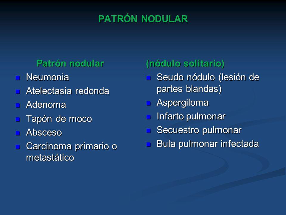 PATRÓN NODULARPatrón nodular. Neumonia. Atelectasia redonda. Adenoma. Tapón de moco. Absceso. Carcinoma primario o metastático.