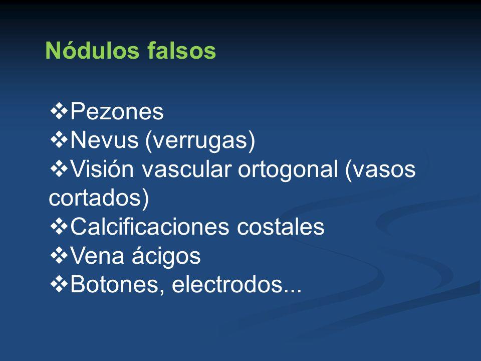 Nódulos falsos Pezones. Nevus (verrugas) Visión vascular ortogonal (vasos cortados) Calcificaciones costales.