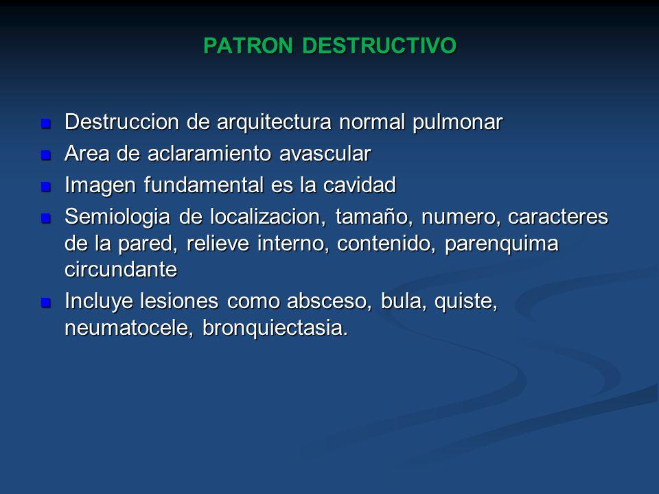 PATRON DESTRUCTIVO Destruccion de arquitectura normal pulmonar. Area de aclaramiento avascular. Imagen fundamental es la cavidad.