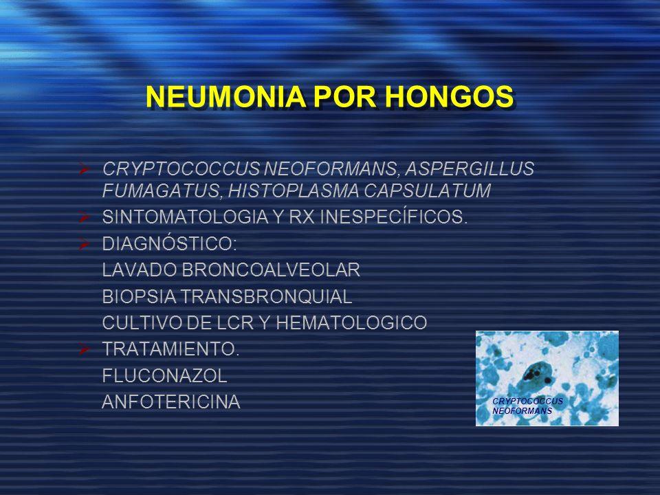 NEUMONIA POR HONGOS CRYPTOCOCCUS NEOFORMANS, ASPERGILLUS FUMAGATUS, HISTOPLASMA CAPSULATUM. SINTOMATOLOGIA Y RX INESPECÍFICOS.