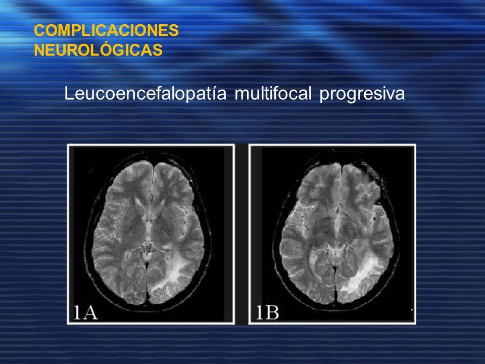 Leucoencefalopatía multifocal progresiva