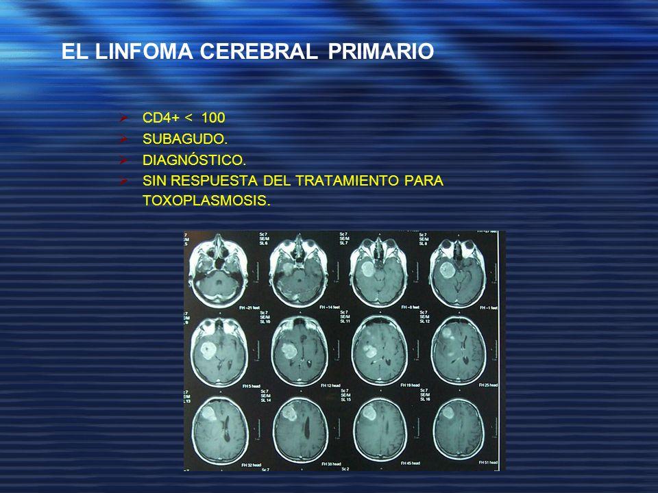 EL LINFOMA CEREBRAL PRIMARIO
