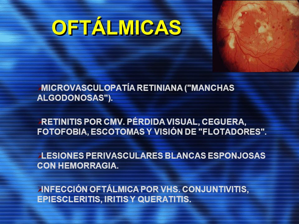 OFTÁLMICAS MICROVASCULOPATÍA RETINIANA ( MANCHAS ALGODONOSAS ).
