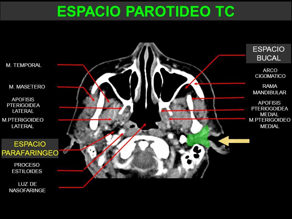 ESPACIO PAROTIDEO TC ESPACIO BUCAL ESPACIO PARAFARINGEO M. TEMPORAL