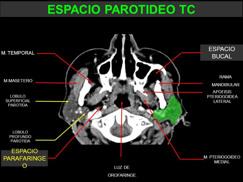 ESPACIO PAROTIDEO TC ESPACIO BUCAL ESPACIO PARAFARINGE O M. TEMPORAL