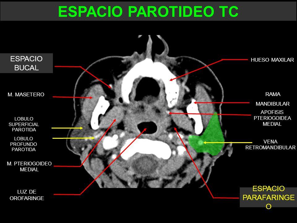 ESPACIO PAROTIDEO TC ESPACIO BUCAL ESPACIO PARAFARINGE O HUESO MAXILAR