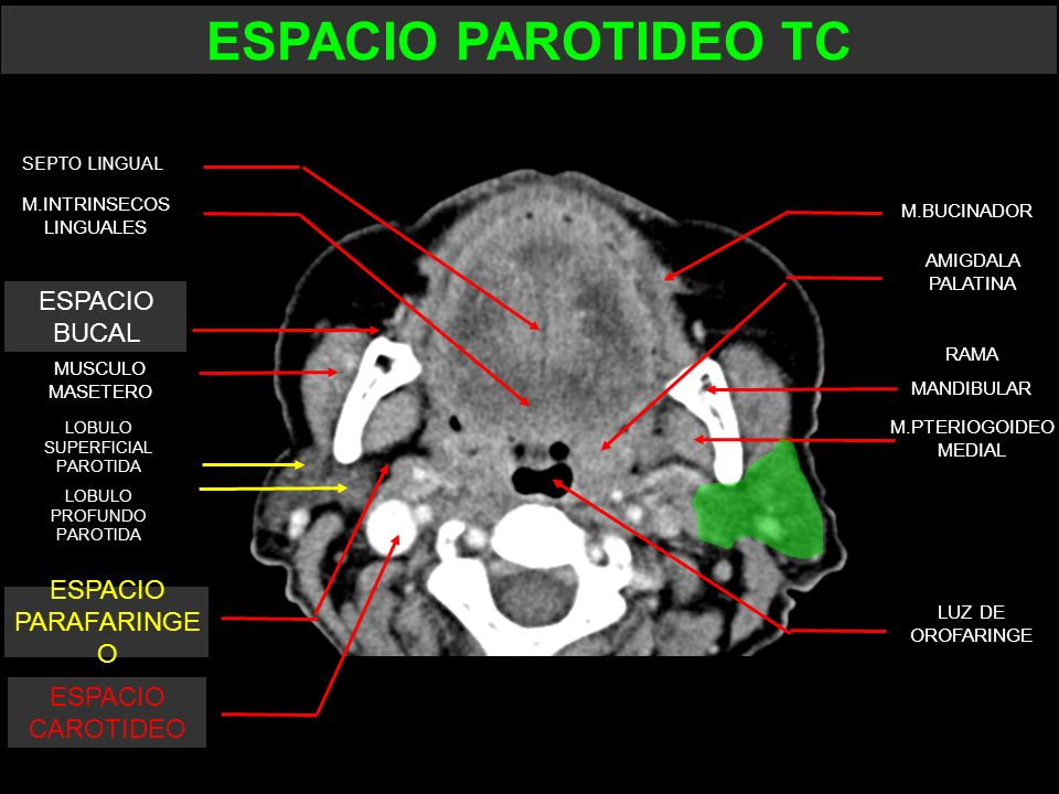 ESPACIO PAROTIDEO TC ESPACIO BUCAL ESPACIO PARAFARINGE O