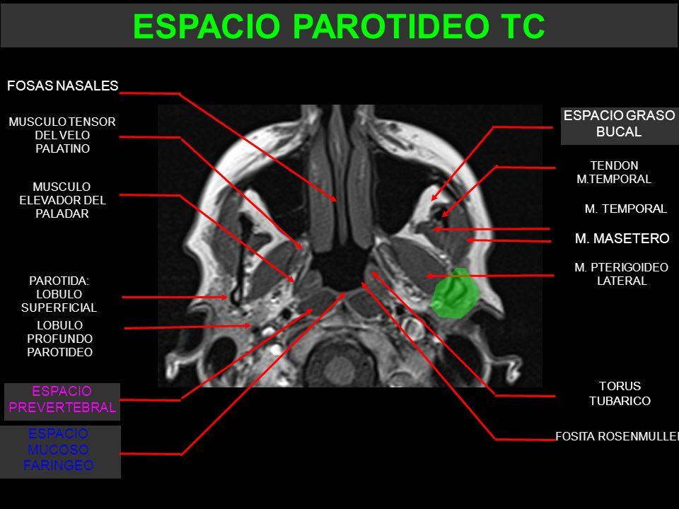 ESPACIO PAROTIDEO TC FOSAS NASALES ESPACIO GRASO BUCAL M. MASETERO