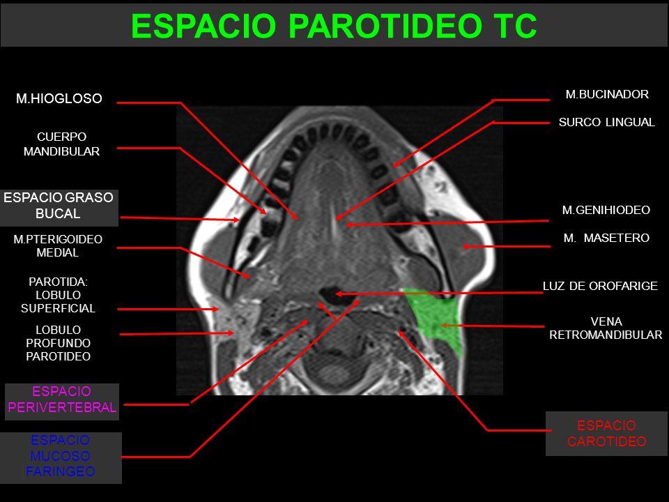 ESPACIO PAROTIDEO TC M.HIOGLOSO ESPACIO GRASO BUCAL