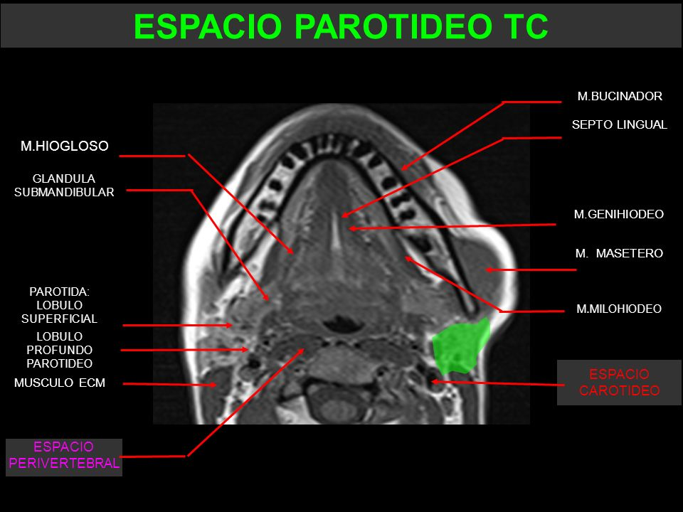 ESPACIO PAROTIDEO TC M.HIOGLOSO ESPACIO CAROTIDEO