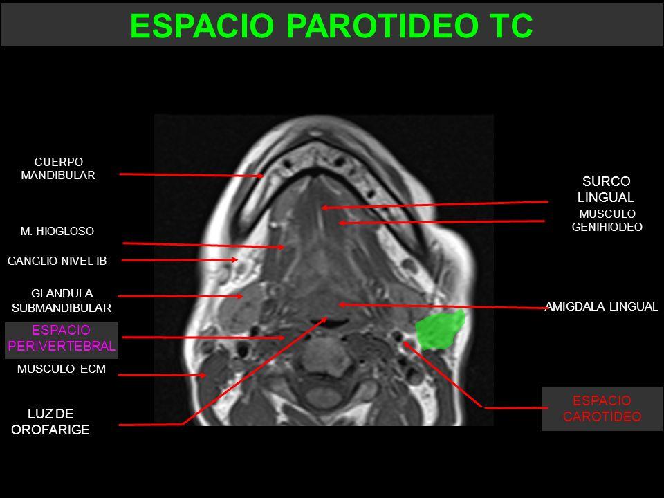 ESPACIO PAROTIDEO TC SURCO LINGUAL ESPACIO PERIVERTEBRAL