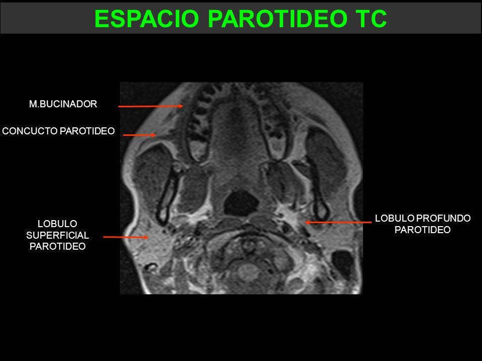 ESPACIO PAROTIDEO TC M.BUCINADOR CONCUCTO PAROTIDEO