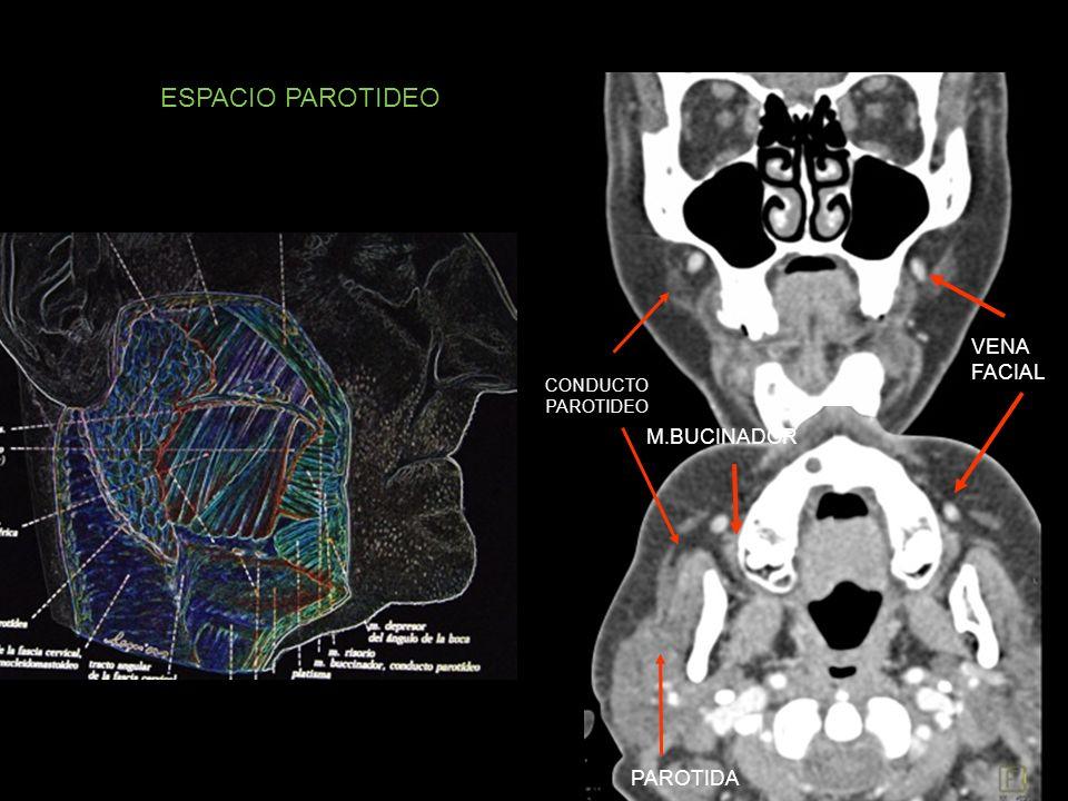 ESPACIO PAROTIDEO VENA FACIAL CONDUCTO PAROTIDEO M.BUCINADOR PAROTIDA