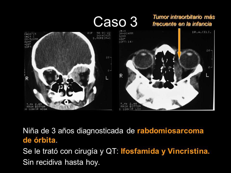Caso 3 Niña de 3 años diagnosticada de rabdomiosarcoma de órbita.