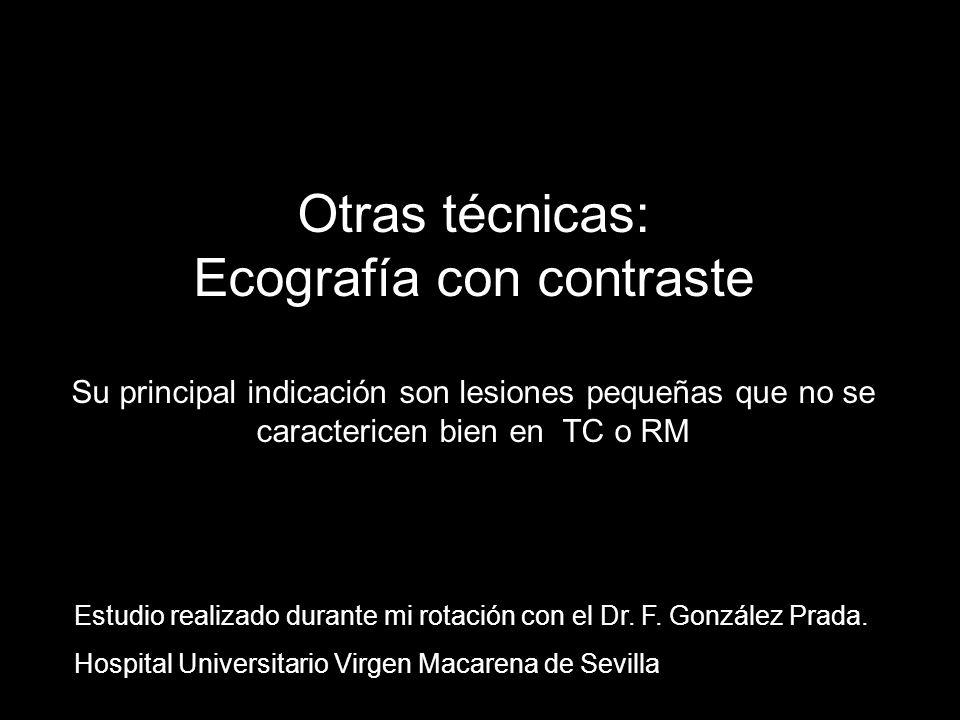 Otras técnicas: Ecografía con contraste Su principal indicación son lesiones pequeñas que no se caractericen bien en TC o RM