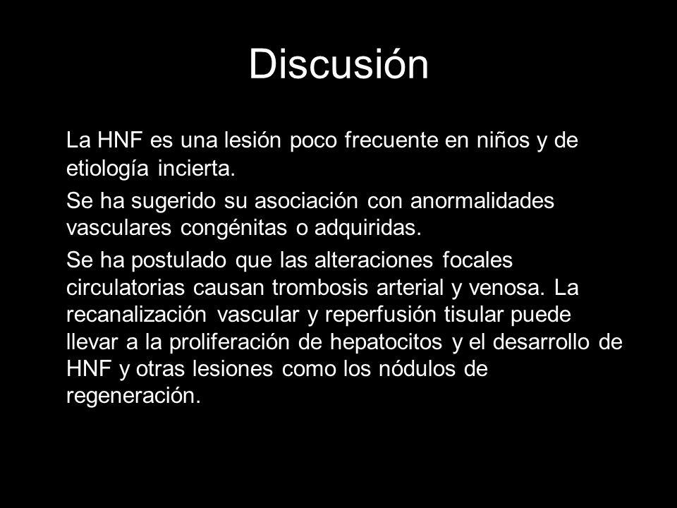 DiscusiónLa HNF es una lesión poco frecuente en niños y de etiología incierta.