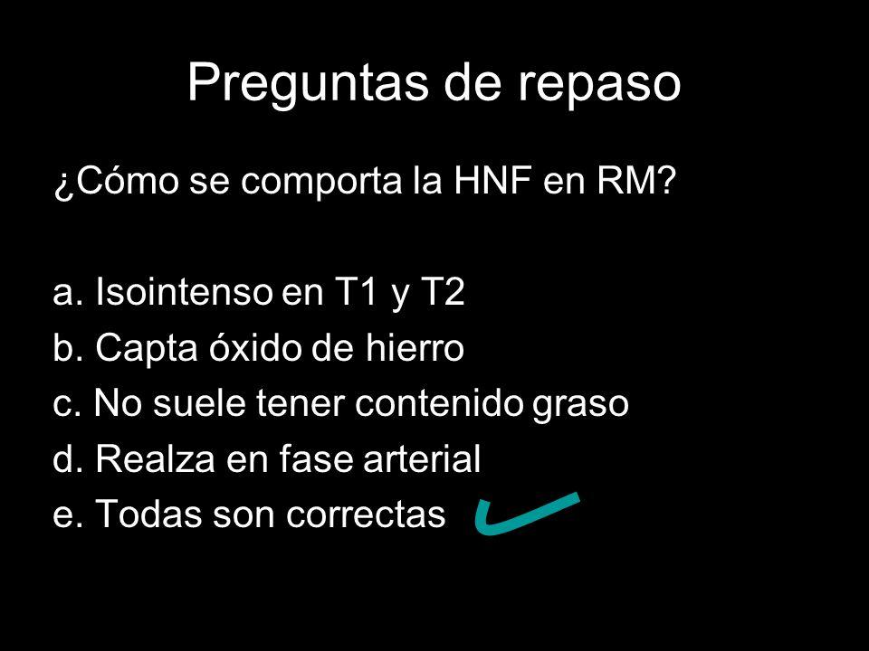 Preguntas de repaso ¿Cómo se comporta la HNF en RM