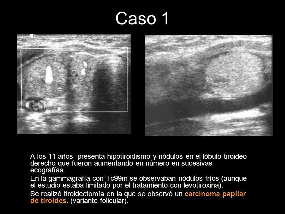 Caso 1A los 11 años presenta hipotiroidismo y nódulos en el lóbulo tiroideo derecho que fueron aumentando en número en sucesivas ecografías.
