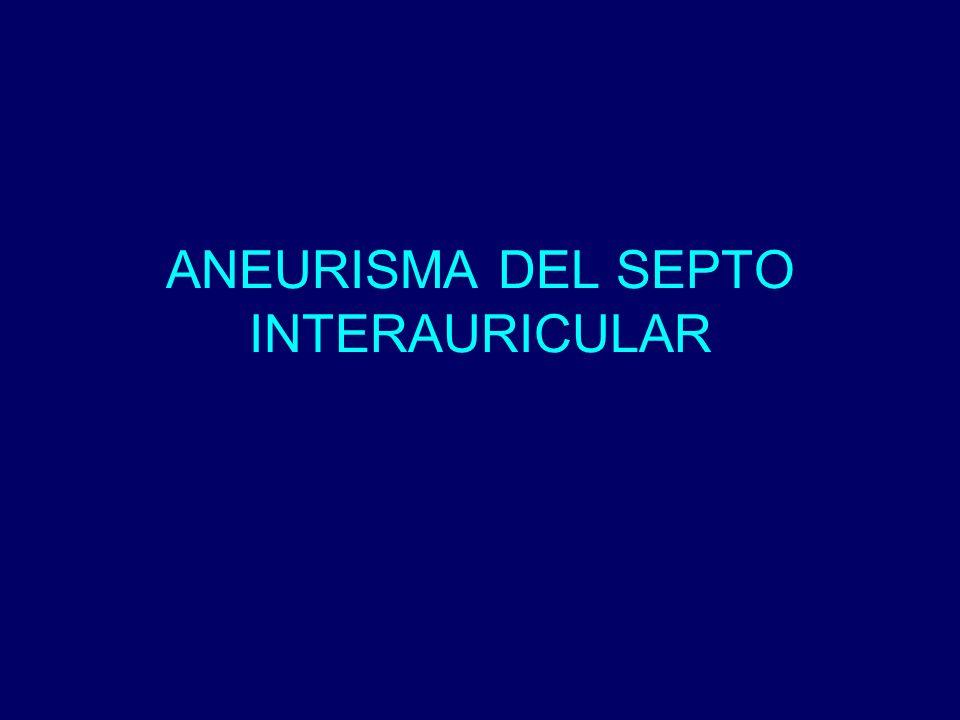 ANEURISMA DEL SEPTO INTERAURICULAR