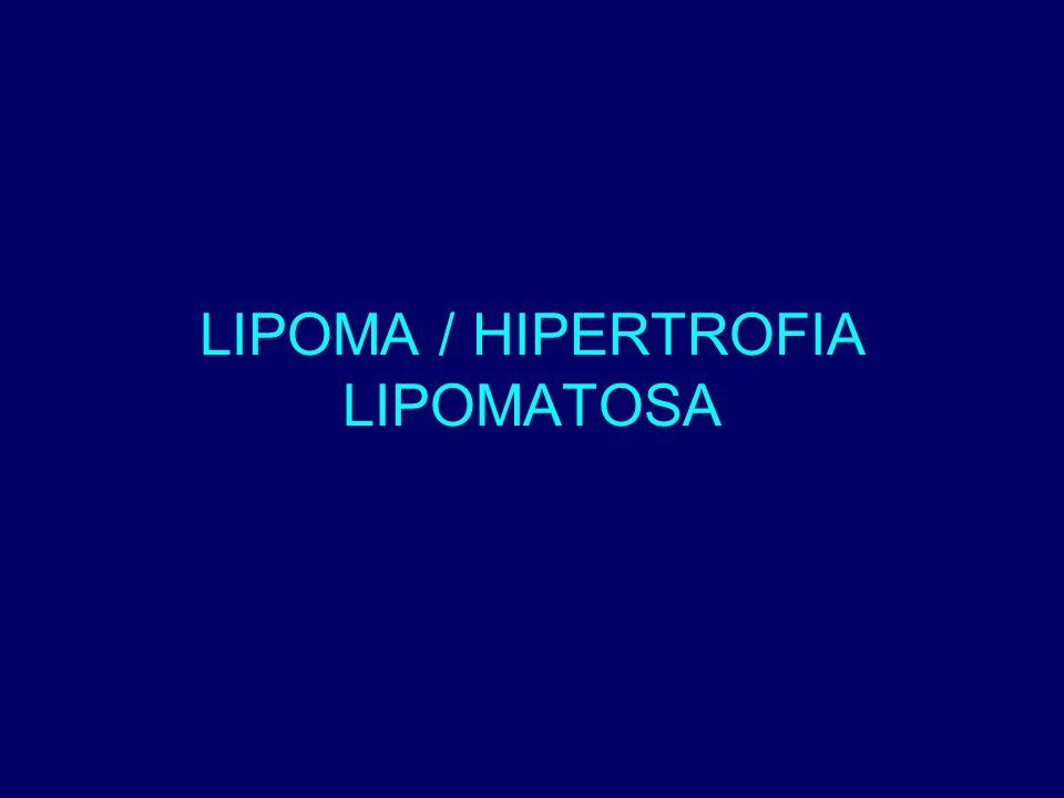LIPOMA / HIPERTROFIA LIPOMATOSA