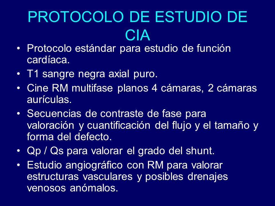 PROTOCOLO DE ESTUDIO DE CIA