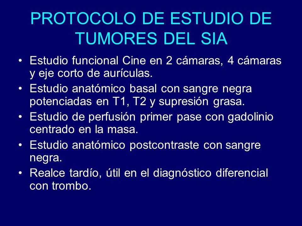 PROTOCOLO DE ESTUDIO DE TUMORES DEL SIA