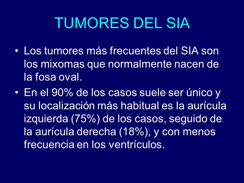 TUMORES DEL SIA Los tumores más frecuentes del SIA son los mixomas que normalmente nacen de la fosa oval.