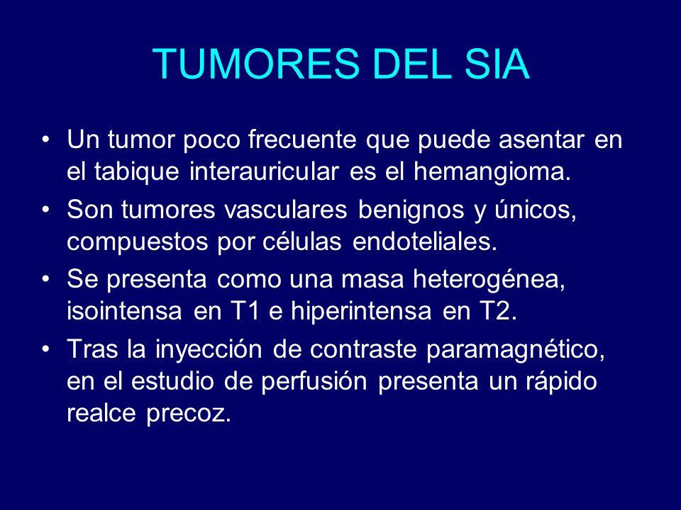 TUMORES DEL SIA Un tumor poco frecuente que puede asentar en el tabique interauricular es el hemangioma.