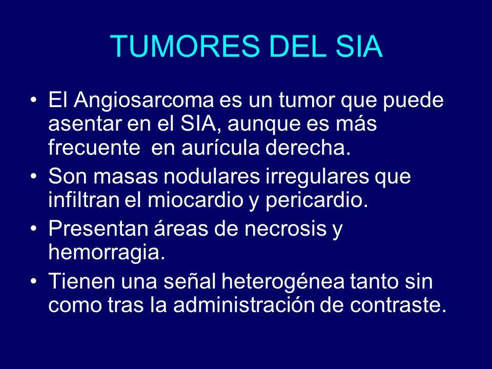 TUMORES DEL SIA El Angiosarcoma es un tumor que puede asentar en el SIA, aunque es más frecuente en aurícula derecha.