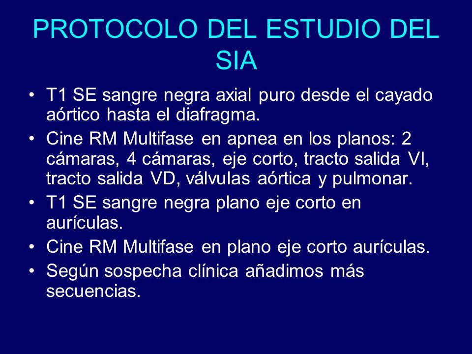 PROTOCOLO DEL ESTUDIO DEL SIA