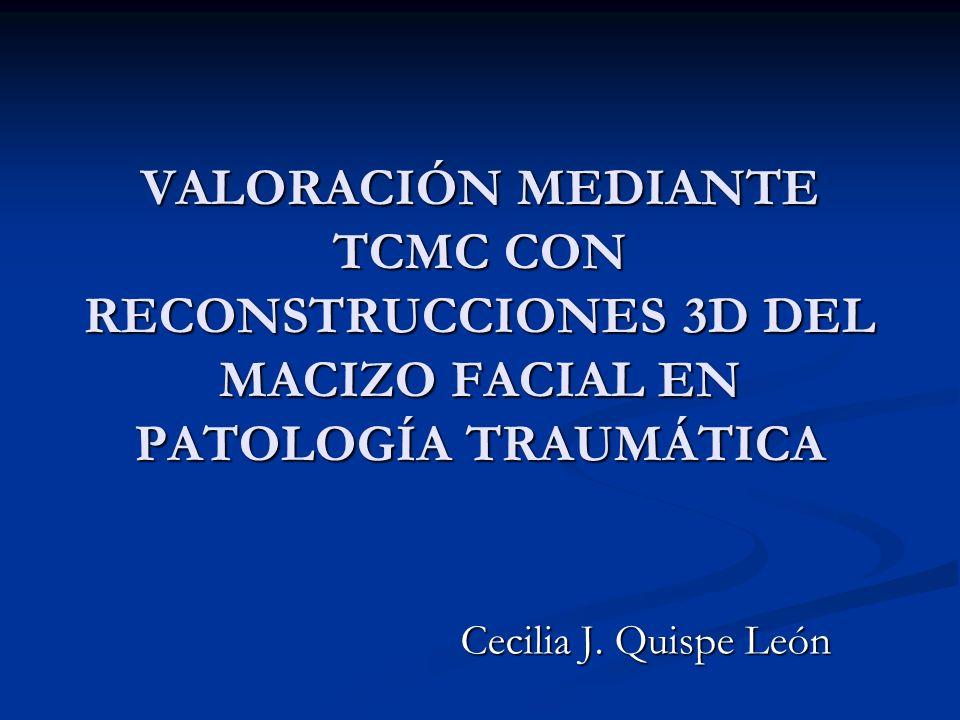 VALORACIÓN MEDIANTE TCMC CON RECONSTRUCCIONES 3D DEL MACIZO FACIAL EN PATOLOGÍA TRAUMÁTICA