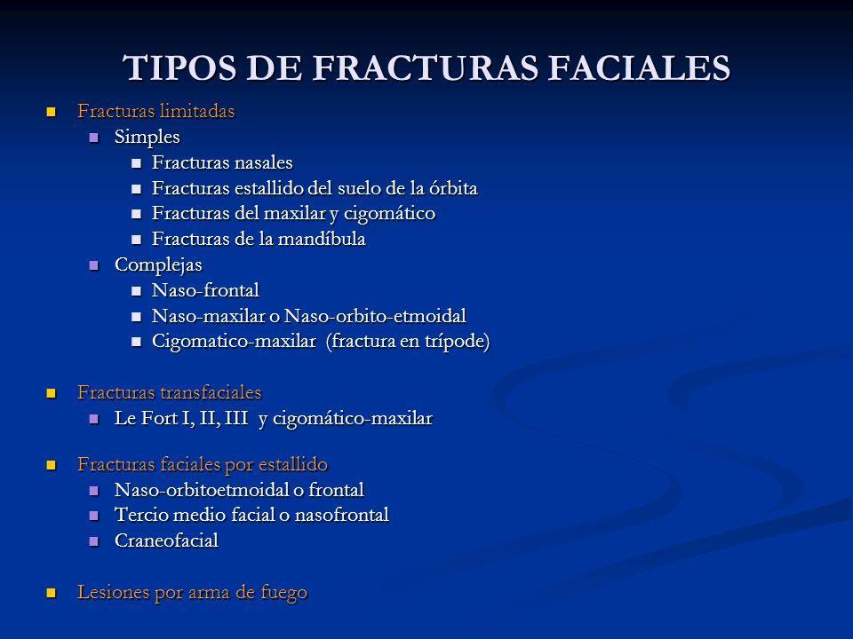 TIPOS DE FRACTURAS FACIALES