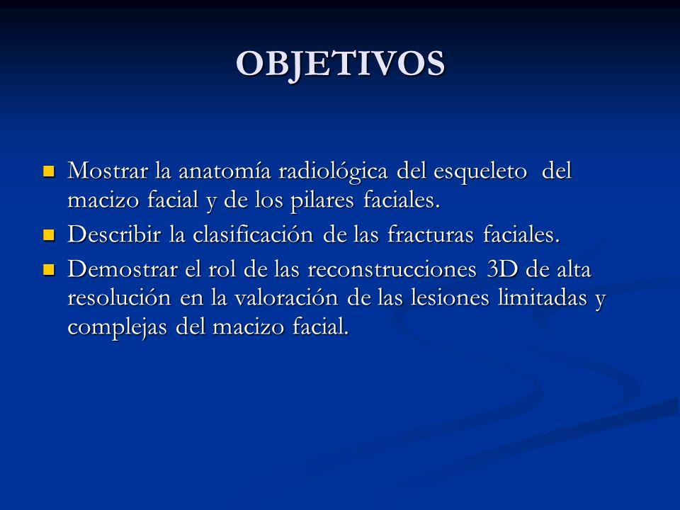 OBJETIVOS Mostrar la anatomía radiológica del esqueleto del macizo facial y de los pilares faciales.