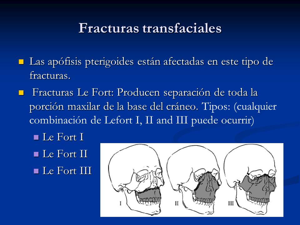 Fracturas transfaciales