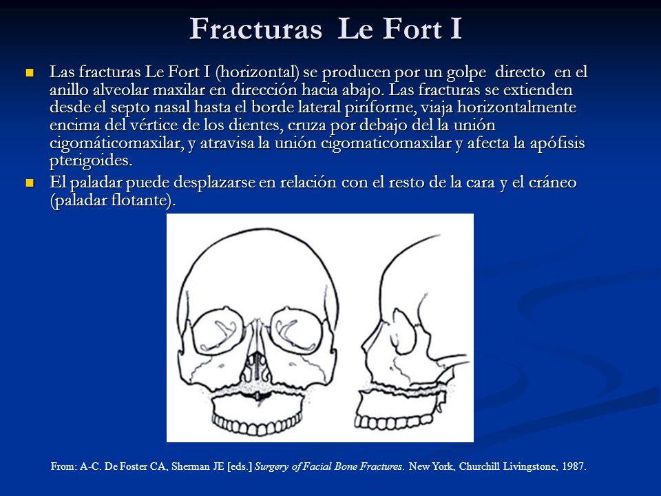 Fracturas Le Fort I